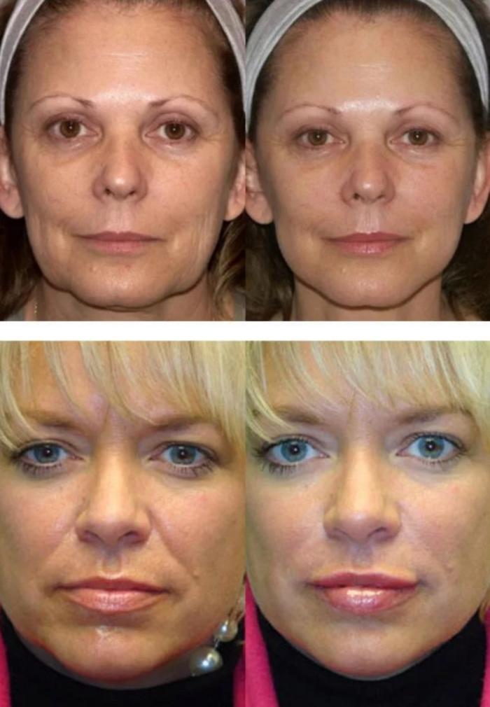 вакуумный массаж лица до и после фото