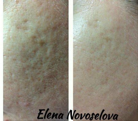Химический пилинг кожи лица (фото): виды, показания и противопоказания