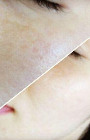Ферментативный (энзимный) пилинг кожи лица (фото): эффективность, преимущества и недостатки, показания и противопоказания