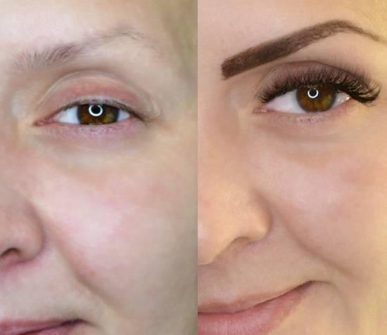 наращивание фото до и после