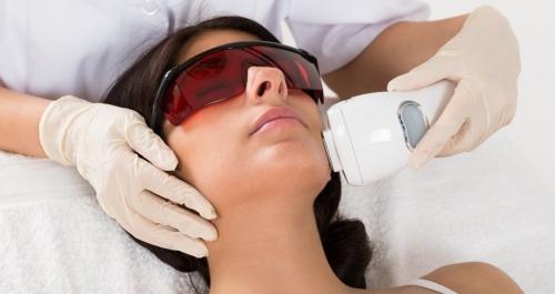 Преимущества лазерной эпиляции на лице