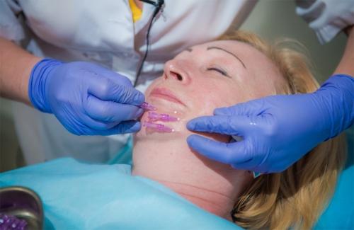 Методика подтяжки лица с помощью мезонитей