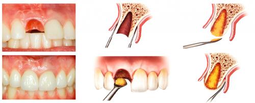 Этапы лечения периодонтита