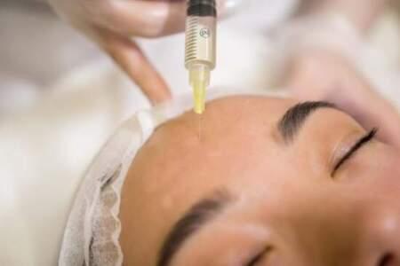 Биоревитализация — косметическая процедура. Нужна ли она?